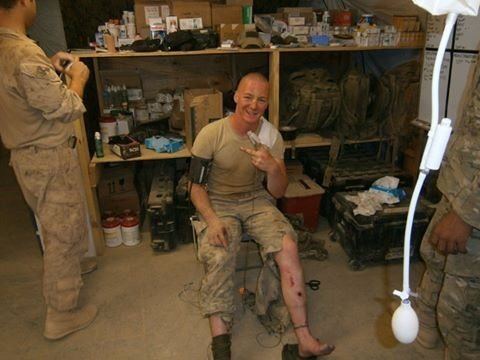 Jake said he said he trusted his physician at the Leavenworth VA with his health, just as he did with medics in Afghanistan after he was injured. (Courtesy: Jake)