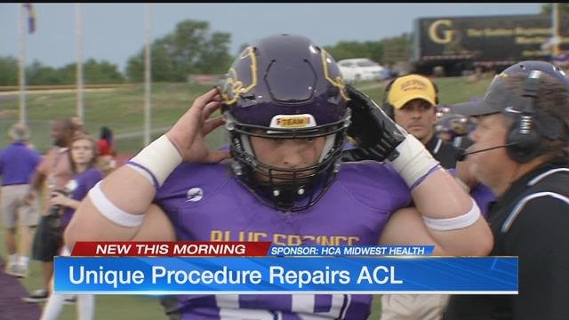 Unique procedure repairs ACL