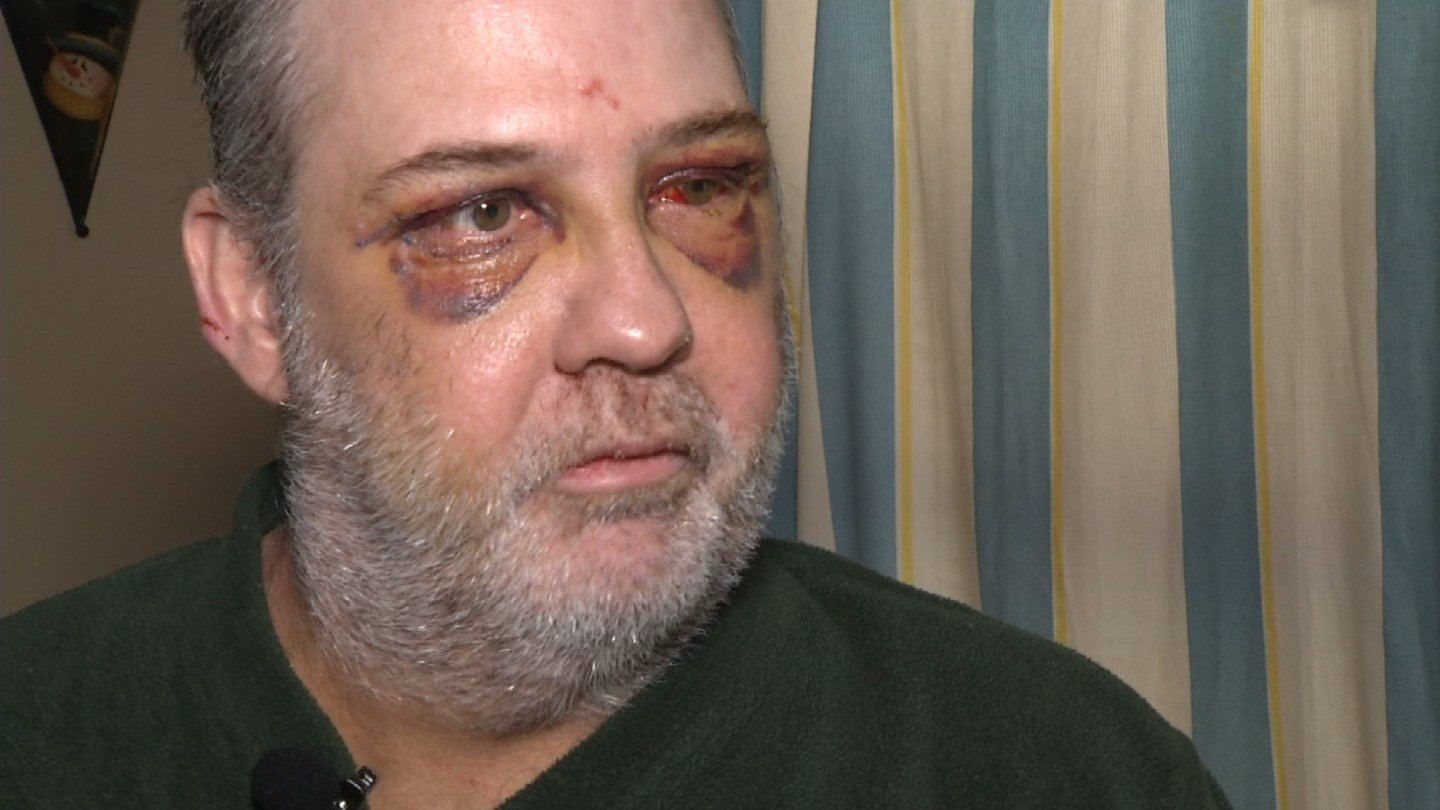 Kevin Koehlerspent nine days in the hospital and hours in surgery. (KCTV5)