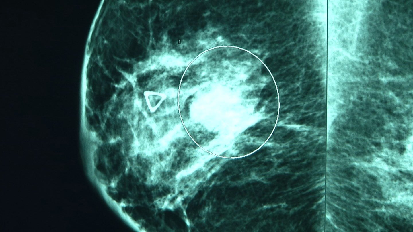 """Few people realize that the """"search for a cure"""" actually involves different cures for different kinds of breast cancer. (KCTV5)"""