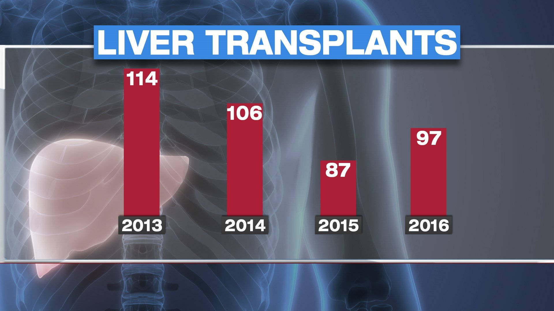 Doctors at the University of Kansas Hospital have been issuing a similar warning. They say under regional sharing programs, their liver transplant program has taken a hit. (KCTV5)