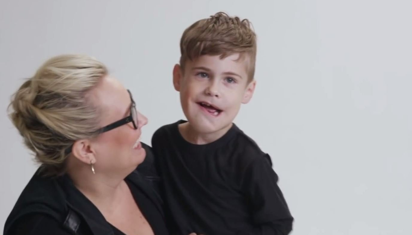 A facial anomaly can be a cleft lip and palate, a birthmark, facial paralysis or in 8-year-old Winston Bertrand's case, lymphangioma. (Just Like You Films)