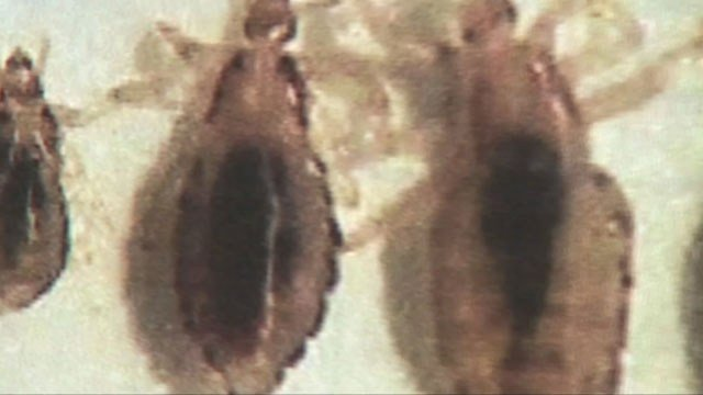 Consumer reports say physically combing out the bugs and their eggs is safer and more effective than popular chemical treatments. (KCTV5)