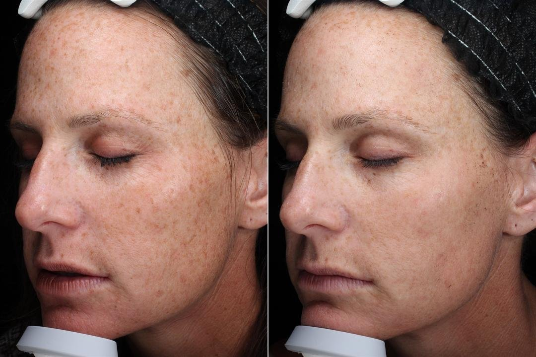 Many stars and beauty magazines are raving about a certain laser skin treatment that claims it can do it all -- reduce fine lines, erase freckles, sun spots, acne scars and make your skin glow again. (AesthetiCare Medspa)