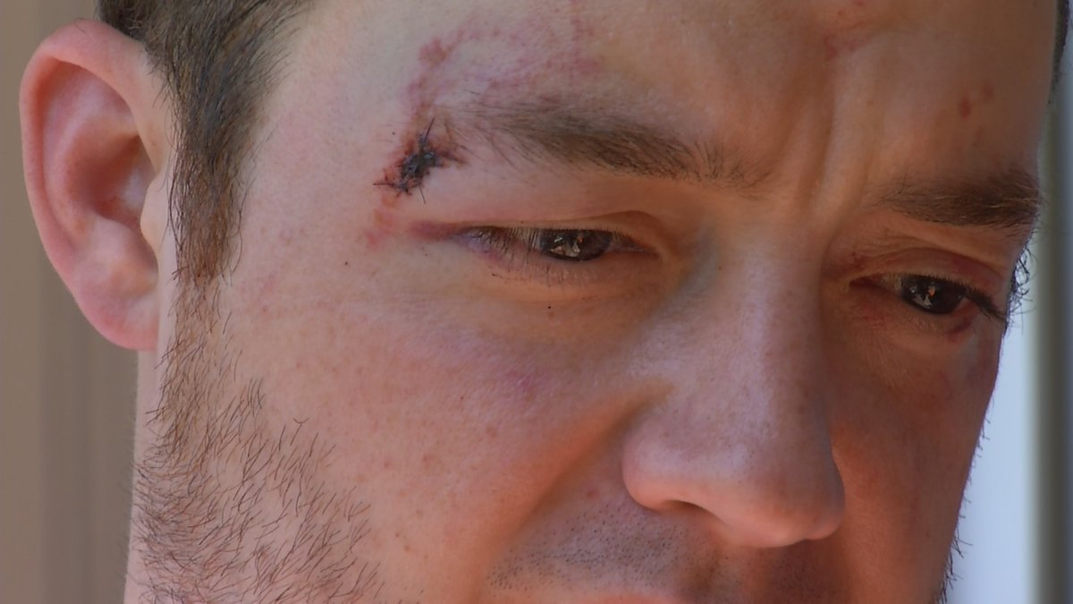 Justin Richardson was attacked in his driveway as he was coming home from work. (KCTV/Nathan Vickers)