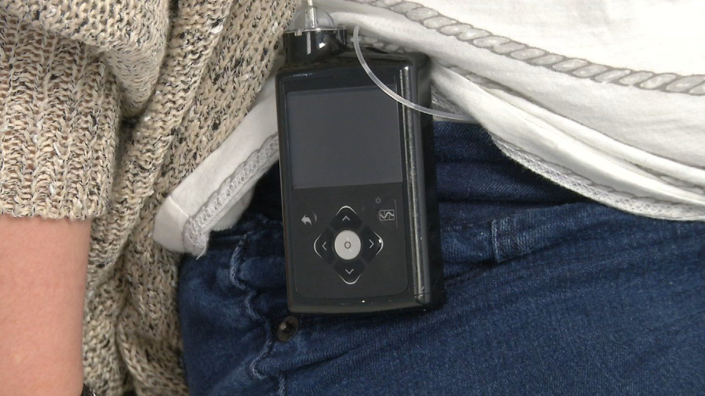 A new insulin pump is helping people manage their diabetes. (KCTV5)
