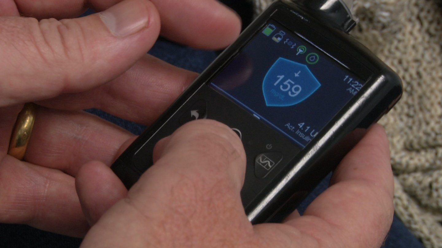 Medtronic's MiniMed 670G system was approved by the FDA in September 2016. It's the world's first hybrid closed loop system, which means it's almost fully automated. (KCTV5)