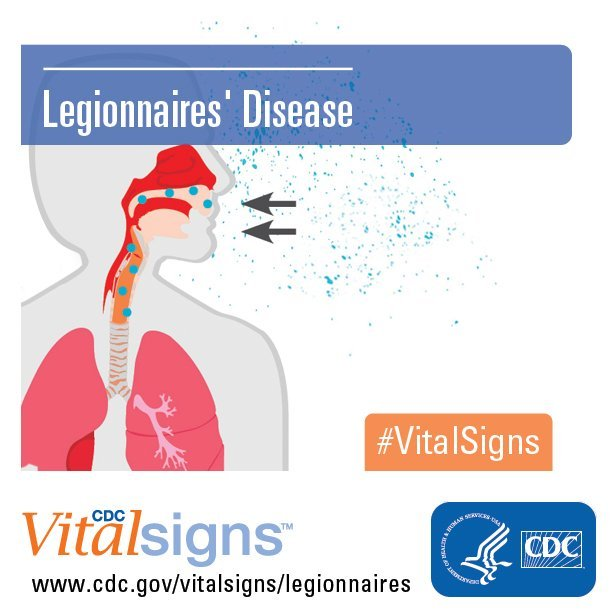 The rare type of pneumonia caused by Legionella bacteria does not spread from person to person, but there is concern about how it spreads.(File)