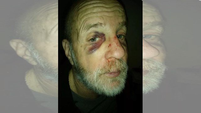 Stan Cosgrove says a man confronted him at a bus stop off North Oak Trafficway Monday around 5:30 p.m. and demanded his wallet and diamond ring. (Submitted)