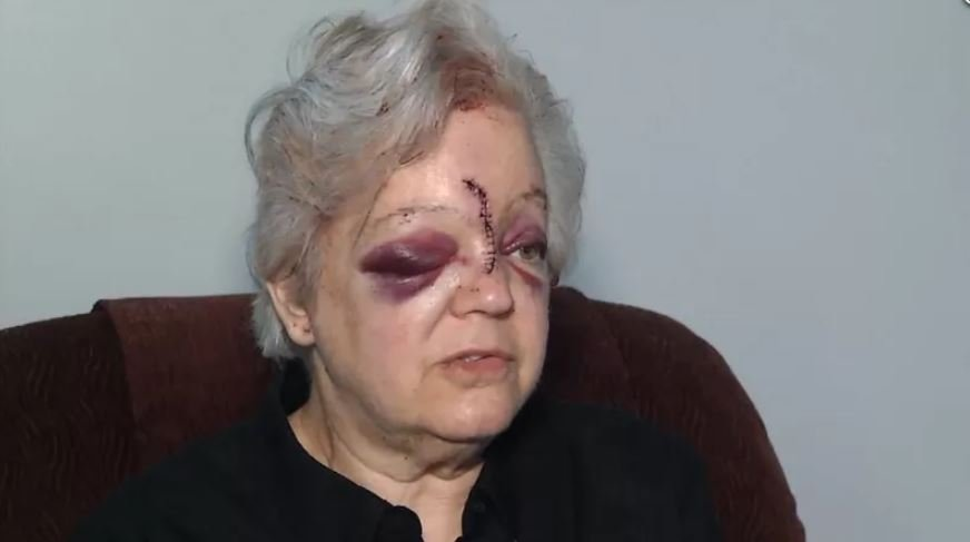 It's been nearly one year since a Kansas City woman was attacked with a hammer. (KCTV5)