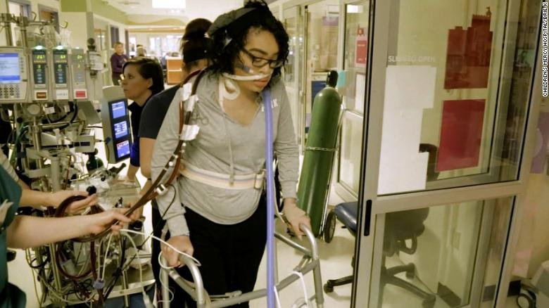 Zei Uwadia has been on life support for more than 130 days but she is changing what life support looks like for her and future patients. (Children's Mercy Hospital)