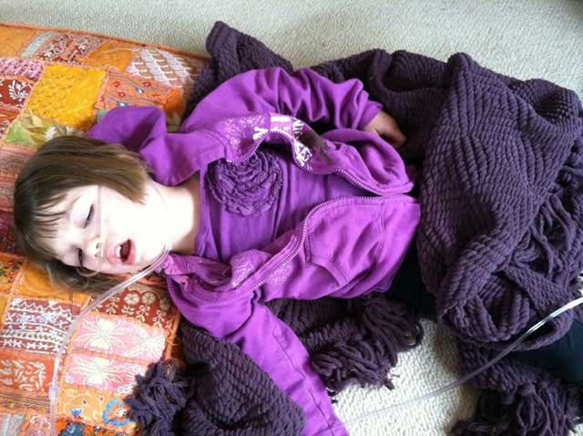 By the time she was 3, Charlotte was having up to 300 grand mal seizures every week. Eventually she lost the ability to walk, talk and eat. (Courtesy Figi Family)