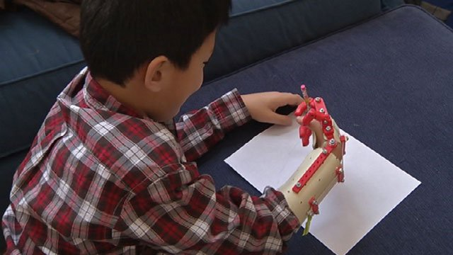 A birth defect left Matthew Shields' hand underdeveloped.  He was born with only a thumb on his right hand, but now a 3-D printer at the library is now making those things possible.