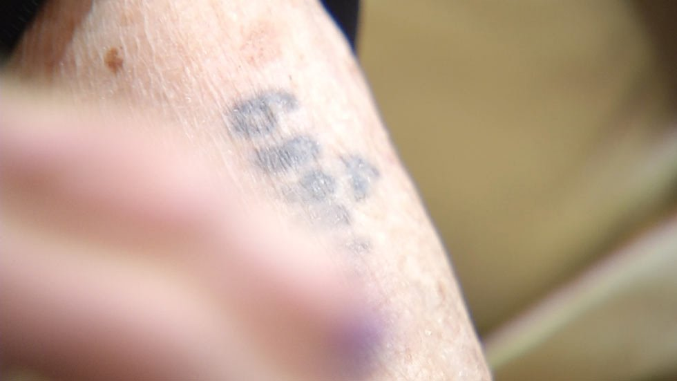 Sonia Warshawski shows the prisoner identification tattoo on her arm.