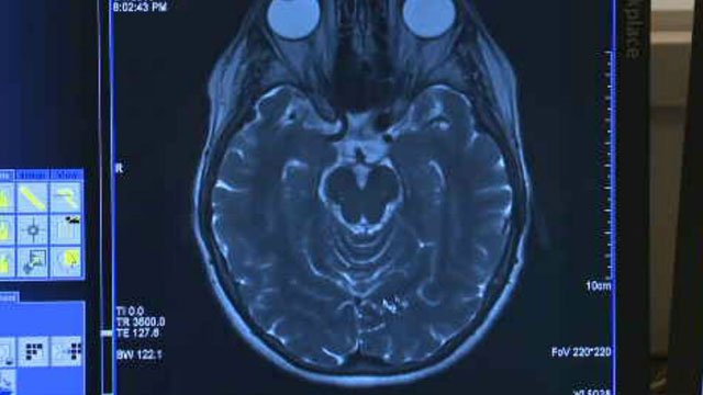 A new study finds headache sufferers undergo about $1 billion worth of brain scans each year, even though most of those tests are unnecessary.