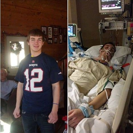 The St. Louis Post-Dispatch reports the story of 18-year-old Brayden Travis, who is now in a coma at a local hospital, has been shared more than 330,000 times on the social media site.