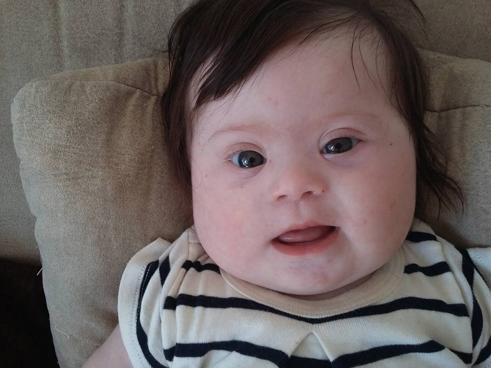 In the four months since her baby girl Louise was born, Caroline Boudet has heard a lot of hurtful things. Louise has Down syndrome, and too often, Boudet found herself facing insensitive comments or questions. (Caroline Boudet/Facebook)